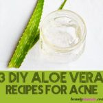 I'm sharing with you 3 great aloe vera recipes for acne! These include: a daily moisturizer, a cooling gel and an antibacterial facial mist! acne 3 DIY Aloe Vera Recipes for Acne Prone Skin - beautymunsta - free natural beauty hacks and more! Aloe Vera For Face, Aloe Vera Face Mask, Aloe Vera Gel, Aloe For Acne, Acne Skin, Acne Prone Skin, Moisturizer For Oily Skin, Homemade Moisturizer, Homemade Skin Care