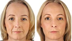 Specials | Ageless Splendor    Juvederm Ultra Plus XC B1G1 Free Syringe Spring Special! Limited Time  Offer! (614) 761-0333