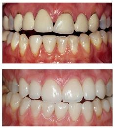 #Cosmetic #Dentistry Treatment Life changing solutions for our patients.. for more information visit. www.dentaldelhidentist.com