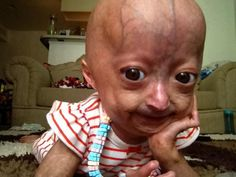 """This is Adalia Rose. She's 5 years old and has Progeria Syndrome. I can't believe she's this strong. She's so beautiful and amazing, and honestly deserves a reblog on here. no it's not a """"reblog or you have no heart"""" post, but if you honestly can't have this on your blog because it'll make it look """"ugly"""", then i honestly don't know what to say to you people. So yeah, this post is for Adalia Rose, the strongest 5 year old I've ever seen. Even her mom"""