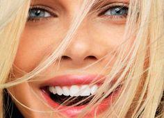 blanqueamiento dental tot dental 2