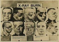 X-Ray burn of face. Facial Maxillary surgery. (Ten Views). 1. Effort to  remove birth-mark just before entering army. 2. Apperance upon arrival  at W.R.G.H [Walter Reed General Hospital?]. 3. Sequestrectomy and  enucleation of right eye. 4. Tissue everted along dotted lines to close  sinus. 5. Pedicle graft from forehead. 6. Sliding graft from temporal  region. 7. Apperance of tube pedicle. 8. Pedicle returned. 9. Result.  10. Result. [X-rays. Radiography. Wounds and injuries.]