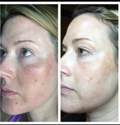This is pictures of a normal beautiful women . who was looking to make her face more beautiful !!! She just gave Nerium try for 30 days with money back guarantee ( no questions asked ) . Since she is loving it . You have the full control over your orders and cancelling the product .  Contact me for more info :  Preitykang.theneriumlook.com