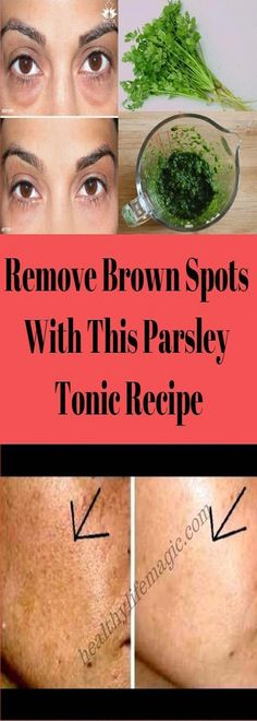 How to get Rid Of Brown Spots on Face #BrownSpotsOnFaceTreatment #BrownSpotsOnSkin