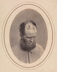 John Parkhurst was wounded in the head April 7, 1865, at Farmville, Virginia. A private in Company E of the 2nd New York Heavy Artillery. The ball fractured the upper portion of the soldier's frontal bone, and he was removed to Harewood U.S. Army General Hospital in Washington, D.C. From Bontecou's printed notes affixed to the verso of this card-mounted photograph, one learns that Parkhurst was fifty years old and that after treatment his health progressed favorably.