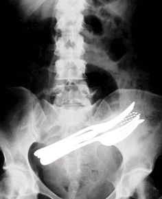 adults Swallowed objects