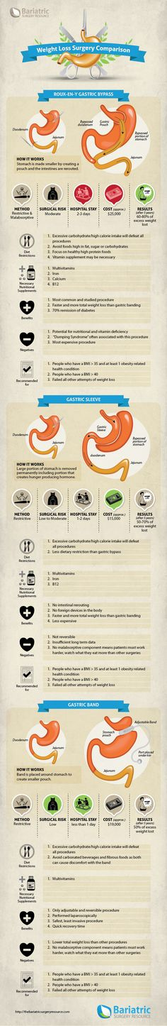 Weight-loss-surgery-comparison-infographic