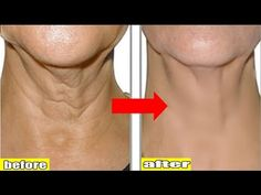 How To Get Rid Of Neck Wrinkles? Home Remedies To Get Rid Of Neck Wrinkles Fast. Neck wrinkle is common to the aged people. Home Remedies For Hemorrhoids, Eczema Remedies, Natural Remedies, Cellulite, Homemade Toner, Neck Wrinkles, Skin Toner, Aging Process, Body Treatments