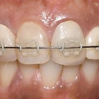 Cosmetic fixed braces differ from invisible braces in that the 26 stages of getting braces solutioingenieria Gallery