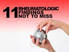 11 Rheumatologic Findings Not to Miss