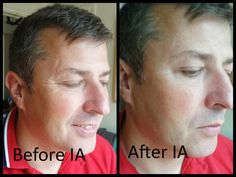 This is my husband his before and after shot using IA on his scar and laughter lines! Amazing results. Experience what its like to be flawless without the needles!!! In just 2 mins instantly ageless gets to work!!!