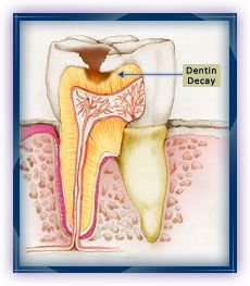 4. Dentin Decay: The decay reaches into the dentin, where it can spread and undermine the enamel.