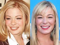Dental Makeover Before and After Photo   LeAnn Rimes www.fairlawndentalassoc.com