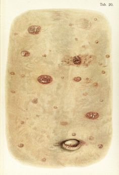 Skin around the navel and abdomen diseased with Syphilis, byFranz Mracek, published: 1898
