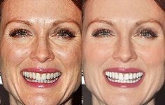 55 Shocking Images Of Celebrities Before And After Photoshop