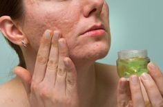 """Fabrica tu propio """"rompe hongos"""" natural para las uñas - Mejor con Salud"""