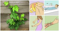 Poison Ivy: 8 Simple And Surprising Home Remedies For Painful Itchy Rashes