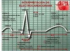 Intrerpretacion ECG