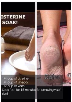 Remover dead skin from your feet