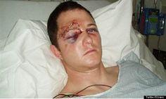 Bogus Photo (that went viral) Does Not Show Ferguson Cop Darren Wilson's Injuries; It's Not Even Him.
