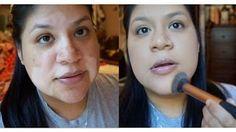 HOW TO: Conceal VITILIGO (face) - YouTube