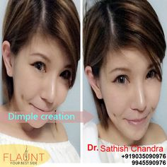 Dimple Creation .Please visit us- www.cosmeticsurgerymangalore.com