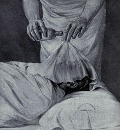 Early ether administration methods  Using a drip-cloth to put a woman in labor under anesthesia.