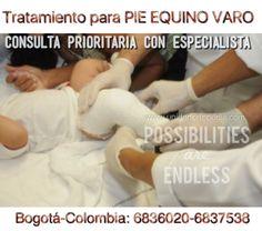 Tratamientos del Pie equino Varo congenito o pie Chapin, bot, zambo entre otros. Visite a nuestros médicos especialistas en Bogotá en La Unidad Especializada en Ortopedia y Traumatología S.A.S www unidadortopedia com es una clínica supraespecializada enfermedades del sistema osteoarticular y musculotendinoso. Ubicados en Bogotá D.C- Colombia. PBX: 571- 6923370, 571-6009349, Móvil +57 314-2448344, 300-2597226, 311-2048006, 317-5905407.