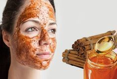 Blackheads Remedies Anxious to know how to get rid of a Pimple overnight! Well, there are a variety of natural as well as usual remedies that tend to heal Pimples Immediately possible. Read further and discern ways on how to get rid of Pimples overnight. Pimples Under The Skin, How To Get Rid Of Pimples, Pimples On Forehead, Get Rid Of Blackheads, Home Remedies For Pimples, Skin Care Remedies, Acne Remedies, Oily Skin Care, Acne Prone Skin