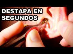 ¡¡TRUCO INCREÍBLE!! DESTAPA TUS OÍDOS EN SEGUNDOS CON ESTE REMEDIO CASERO - YouTube