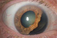 The Best of Ophthalmology.....EyeWorld News Magazine