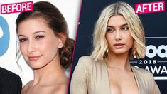 hailey baldwin plastic surgery - Google Search Surgery Doctor, Plastic Surgery Procedures, Celebrity Plastic Surgery, Under The Knife, Makeup For Blondes, Hailey Baldwin, Photoshop, Celebrities, Beauty