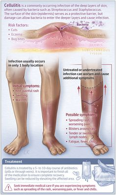 Cellulitis | Dermatology | JAMA Dermatology | JAMA Network Nursing School Notes, Medical School, Nursing Tips, Funny Nursing, Nursing Assessment, Family Nurse Practitioner, Surgical Nursing, Nursing Students, Nursing Pictures