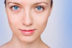 Acne Clear skin within a week: Mix 2 tbls of oatmeal, 1 tsp of apple cidar vinegar, 1 tsp of green tea, 1 tsp of lemom juice, and half tsp of cinnamon in a small microwave safe bowl. After a hot shower or steam bath , rub paste all over face and leave on for 2 hrs. Rinse with warm water, and apply all wet ingredients as a toner.