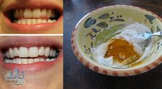 THIS TURMERIC ANTI-INFLAMMATORY PASTE WILL REVERSE GUM DISEASE, SWELLING, AND KILL BACTERIA – Vanilla Sky Magazine