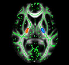 Doctors revision apps onexamination pastest passmedicine mrcp biomarker central can we diagnose familial als sooner with mri courtesy of martin fandeluxe Gallery