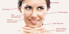 Do you suffer from dry and itchy skin? Are you embarrassed by scars, blemishes or peeling skin? Let the suffering stop and show off your beautiful skin! Microneedling For Acne Scars, Pens For Sale, Line Photo, Cosmetic Procedures, Body Contouring, Skin Problems, Anti Aging Skin Care, Good Skin