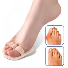 14 Best Toe Support images | Feet care, Bunion, Pedicure tools