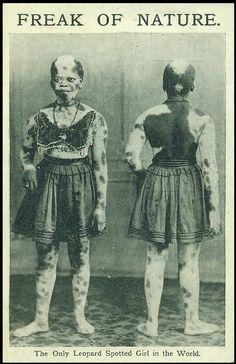 Victorian Freak Show Costume Halloween, Halloween Carnival, Steampunk Circus, Sideshow Freaks, Human Oddities, Horrible Histories, Arte Horror, Vintage Circus, African History