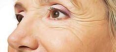 Atténuer naturellement les rides au bord des yeux