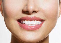 真っ白な歯の正体は…!歯科医が語る「ハリウッドスマイル」の真実