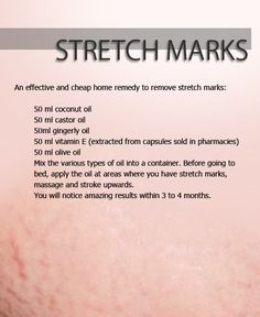How to Get Rid of Stretch Marks Instantly - NewFashionCraze