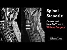 Spinal Stenosis: Causes and How to Treat It Without Surgery Spinal Stenosis Surgery, Cervical Spinal Stenosis, Cervical Spondylosis, Neck Surgery, Spine Surgery, Sciatic Nerve, Nerve Pain, Nervous System Anatomy, Surgery Humor