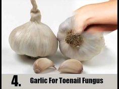 7 Home Remedies For Toenail Fungus - YouTube