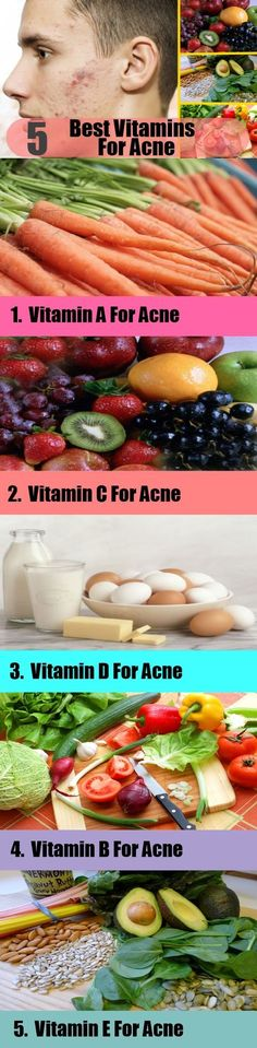 5 Best Vitamins For Acne