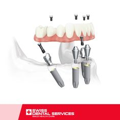 With the All-on-4 technique it is possible to recover your smile even without bone grafts! www.swissdentalservices.com/en