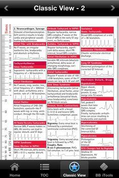 ekg interpretation cheat sheet | ECG i-Pocketcards – comprehensive pocket reference guide for ...