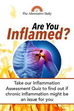 In pain? Take the Inflammation quiz. Health Facts, Health And Nutrition, Health Tips, Health And Wellness, Health Fitness, Health Articles, Anti Inflammatory Diet, Medical Information, Health Matters