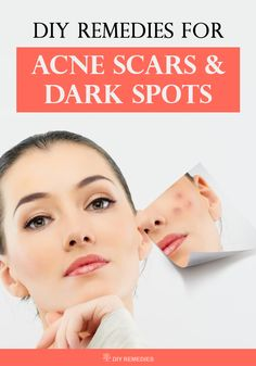 Here are some effective natural remedies that work effectively for treating acne scars and dark spots on the skin. Let's get started.