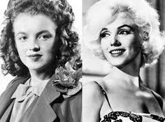 Marilyn Monroe's Medical Records and X-Rays Confirm Plastic Surgery—Take a Look! Norma Jeane Baker, Marilyn Monroe, Something's Got to Give Marilyn Monroe Plastic Surgery, Marilyn Monroe Fotos, Marylin Monroe, Under The Knife, Celebrity Plastic Surgery, Medical Problems, Norma Jeane, Blond, Hollywood